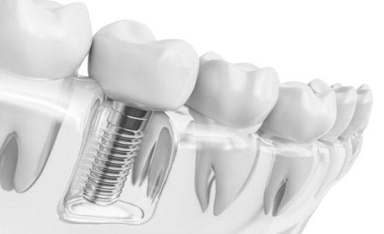 ایمپلنت و کلینیک دندانپزشکی