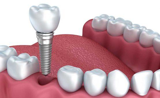 هزینه کاشت دندان در کرج