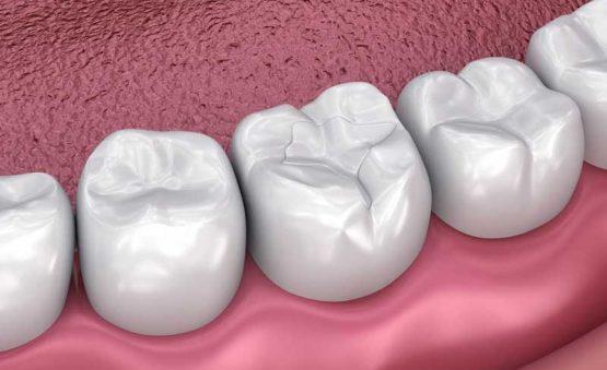 هزینه عصب کشی دندان در کرج